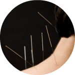 <h2><b>Acupuncture</b></h2>